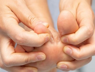 Que faire pour les mycoses des pieds